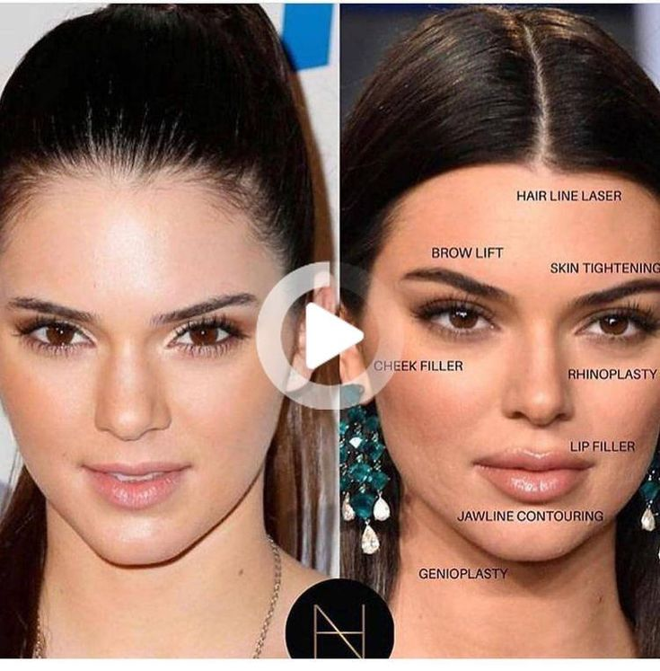 How to an instagram model kendal jenner before and