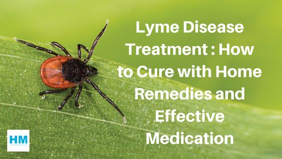 Read detailed article of Lyme disease treatment with effective home remedies and medications. Ayurvedic treament for Lyme tick. Symptoms, causes, prevent.