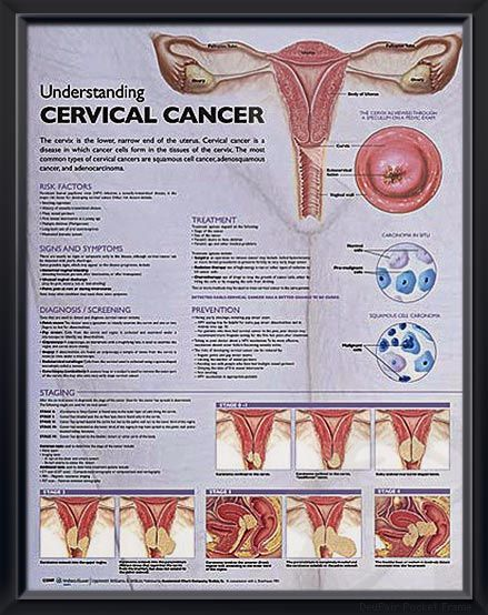Understanding Cervical Cancer anatomy poster defines cervical cancer and lists risk factors, such as human papillomavirus (HPV). Oncology for doctors and nurses.