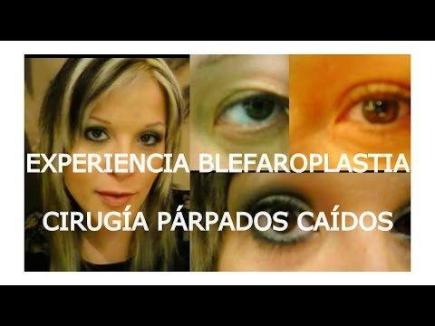 EXPERIENCIA BLEFAROPLASTIA: CIRUGÍA PARPADOS CAÍDOS - YouTube