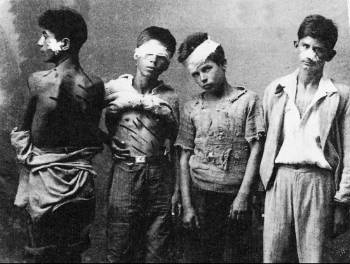 """Thessaly, Greece, 1942-1944. Greek kids joined the resistance against the Axis Triple occupation of the country. They were organized in """"Aetopoula"""" (i.e. Young Eagles) affiliated to EAM (i.e. National Liberation Front). They mostly served carrying messages to resistants. Here, four Aetopoula, show the marks or torture by the German occupation forces at Thessaly, perhaps in 1944."""