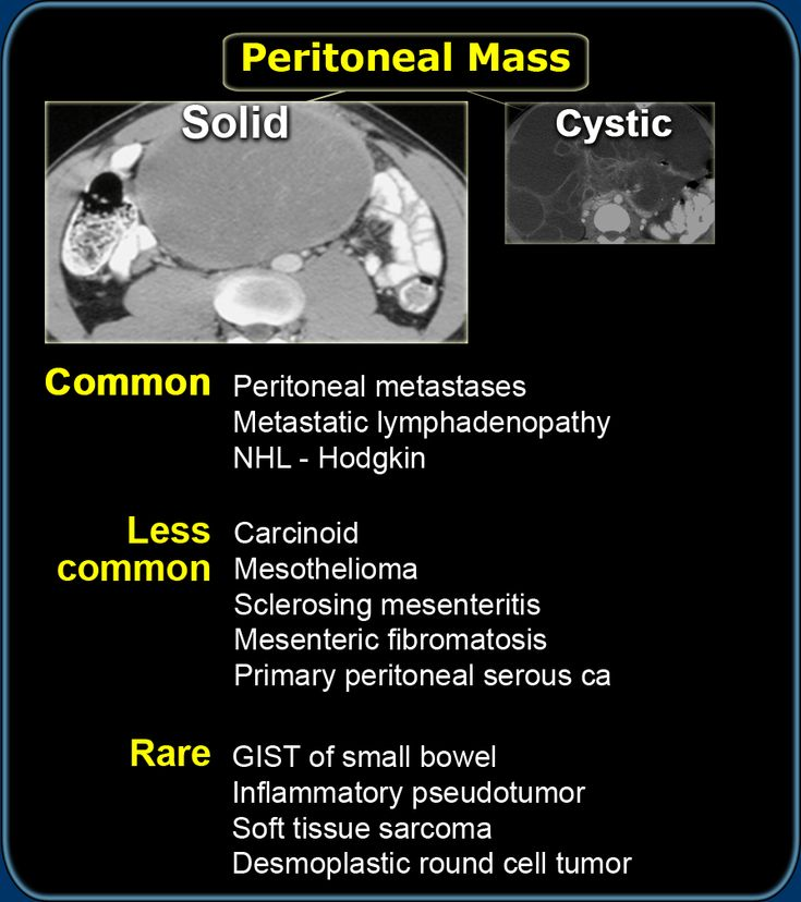 lesser sac cystic lymphangioma gastric outlet obstruction Lymphangiomas are benign multilocular cystic masses that can virtually  of  the lesser sac in adult presenting with features of gastric outlet obstruction - a .