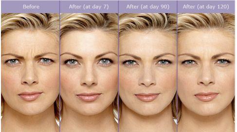 Botox: que savoir avant de se lancer ? #MonSiteBeauté