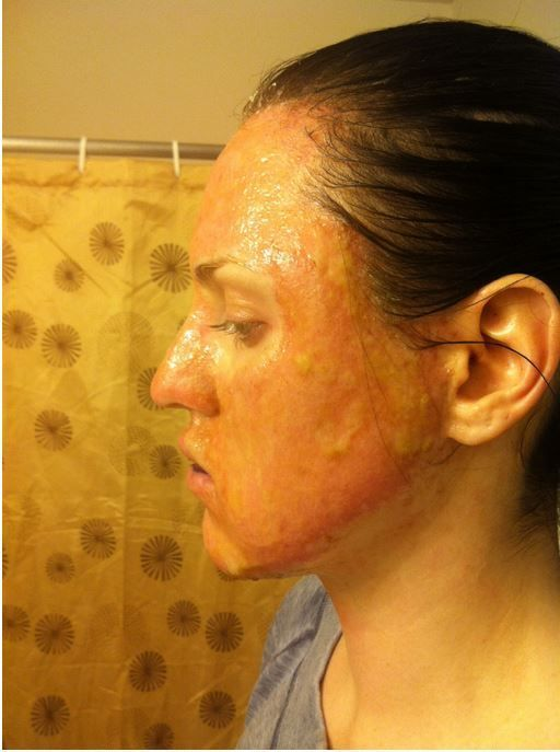 Surgeons seattle plastic facial