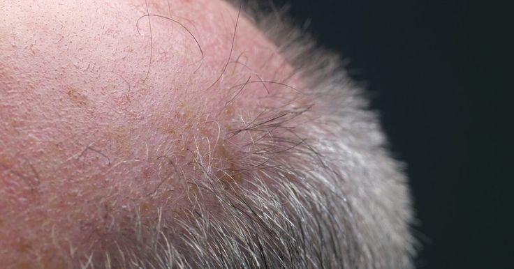 La cafeína y la dihidrotestosterona. La dihidrotestosterona o DHT, es un metabolito natural de la hormona masculina testosterona. La DHT se produce naturalmente en hombres y mujeres, ya que ambos géneros tienen testosterona, aunque en cantidades bruscamente variables. Ésta desempeña un papel importante en la alopecia androgenética, una causa común de la pérdida de cabello, según el ...