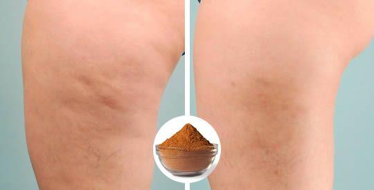 Il nostro corpo riceve ed accumula costantemente tossine, provenienti prevalentemente dal grasso. Se stai cercando [Leggi Tutto...]