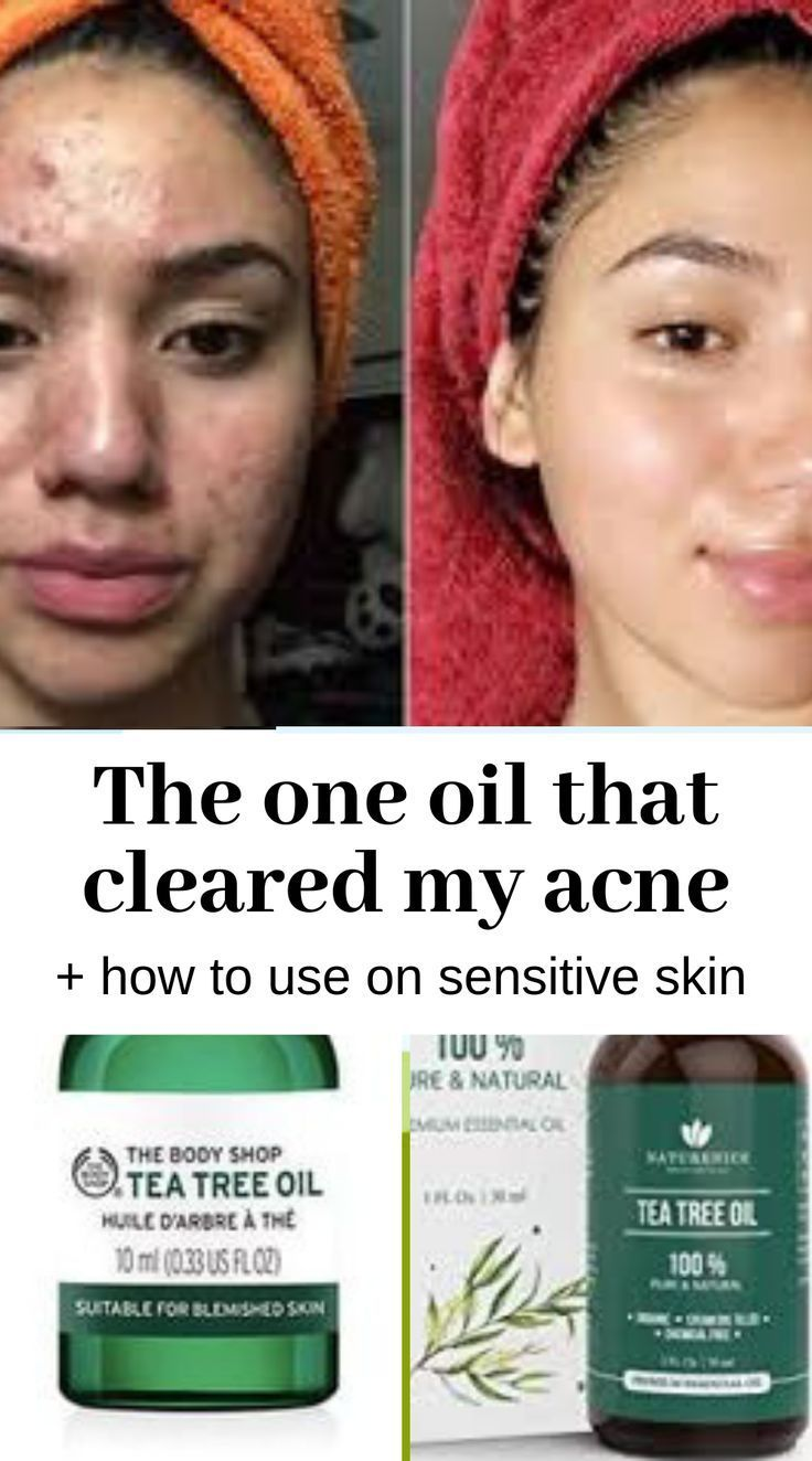 How To Use Tea Tree Oil To Cure Acne In Sensitive Skin Acne Cure Oil Sensitive Skin Tea Tree Tea Tree Oil For Acne Clear Face Tips Acne Free Face