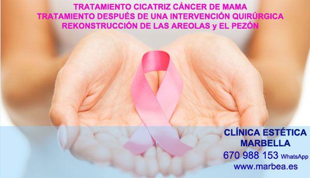 CICATRICES DESPUÉS DEL AUMENTO DE PECHO Rellenos cicatrices post reduccion de senos Marbella y Málaga  or San Pedro.