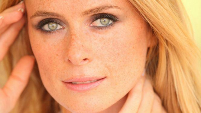 Newsflash: sproetjes hebben déze functie voor je gezicht - Beau Monde