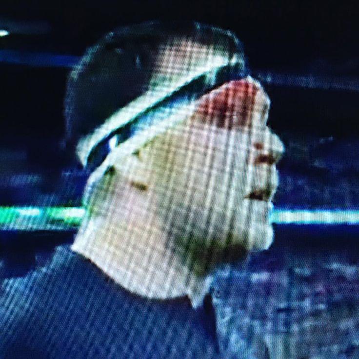 #ARG bloodies the #NZL #AllBlacks but loses #NZLvARG #RWC2015 #rugbyworldcup #RWC2015 #RWC15 #rwc