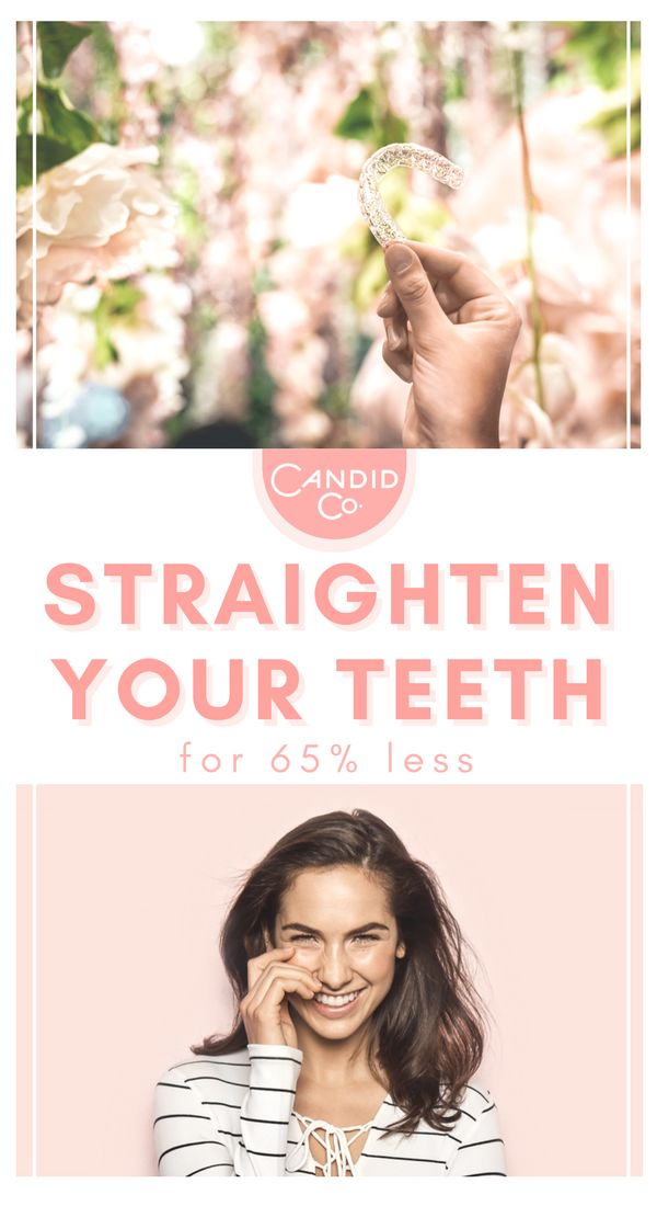 Get the perfect smile for 65% cheaper than traditional braces