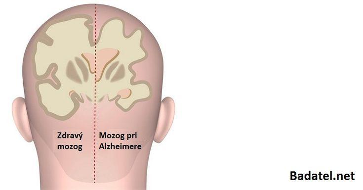Chceli by ste si posilniť mozog a predísť vzniku demencie a Alzheimerovej choroby v staršom veku? Potom urobte týchto 9 vecí ešte dnes.