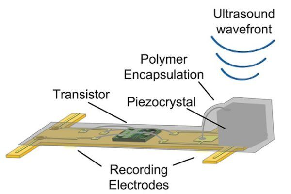 """Neural Dust: tiny wireless implants act as """"electroceuticals"""" for your brain"""