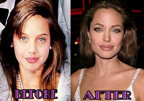 before after botox:Worst Celebrity Plastic Surgery Mishaps