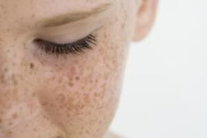 How to Get Rid of Sun-Damaged Skin Naturally | LIVESTRONG.COM