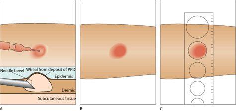 Mantoux test; PPD; TST