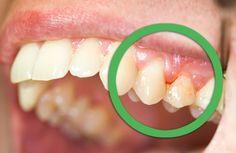 Si lorsque vous vous lavez les dents et que du sang sort de vos gencives, c'est le premier signe de la gingivite.