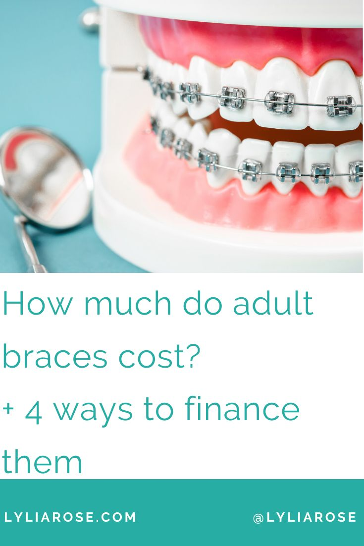 How much do adult braces cost 4 ways to finance them in