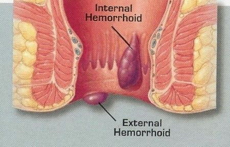 How to soothe pain caused by hemorrhoids