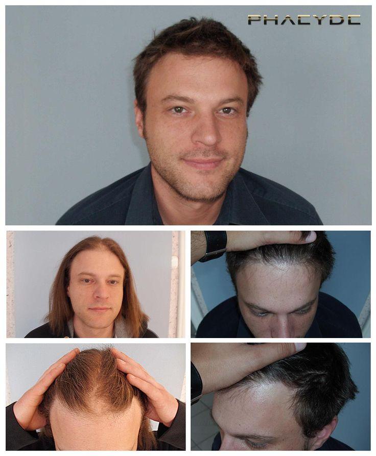 De heer Szalai was kalend op een niet typische manier. Hij had een vrij grote kalende plek in het midden van zijn haarlijn en in de twee tempels. De foto spreekt voor zich, werd de transplantatie gemaakt extreme dichte. Uitgevoerd in het PHAEYDE Clinic.  http://nl.phaeyde.com/haartransplantatie