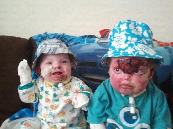 please donate to children in need. for more on this story go to http://www.huffingtonpost.co.uk/2013/03/18/butterfly-brothers-harry-cody-churchill-die-eb_n_2900649.html