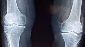 Jak pasterizované mléko doslova ničí naše kosti zevnitř a živí rakovinu