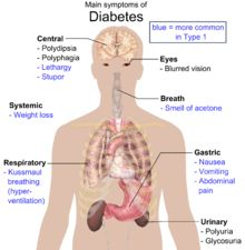 Diabetes mellitus type 2 - Signs and Symptoms