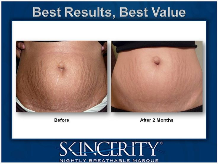 AMAZING RESULTS with Skincerity! Stretch Marks