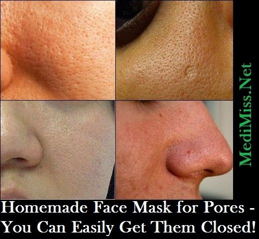 how to close pores on face at home