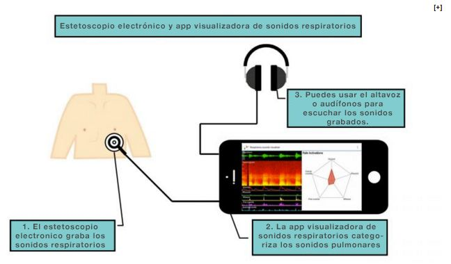 Nuevo estetoscopio electrónico con app para diagnosticar problemas pulmonares