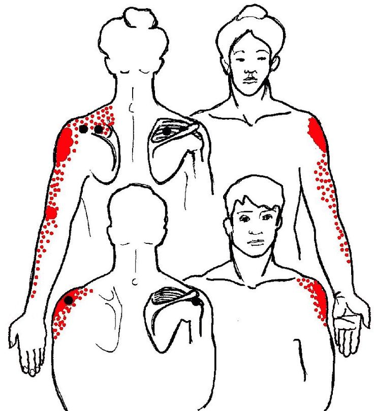 Shoulder girdle and rotator cuff pain info