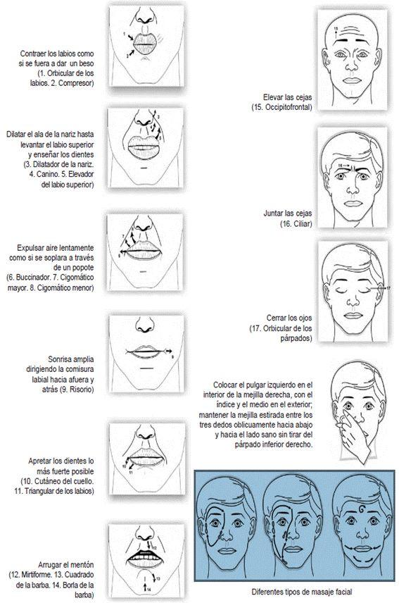 Tratamiento de la Parálisis Facial en medicina, fisioterapia y acupuntura. - Artículo de Fisioterapia