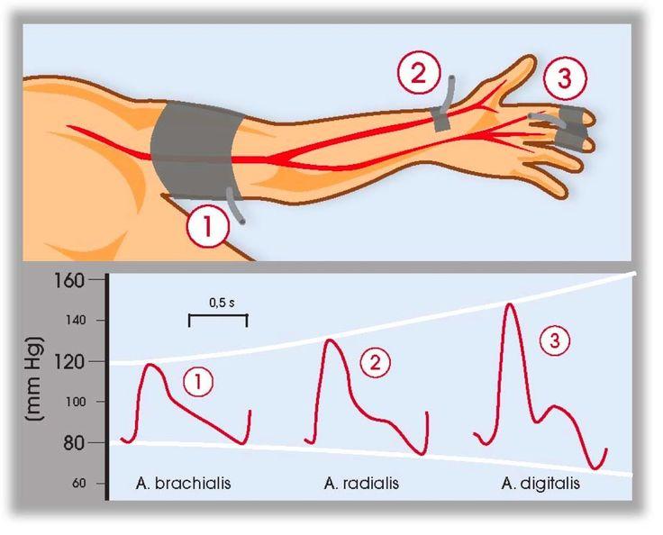 Blood Pressure Exercise Program