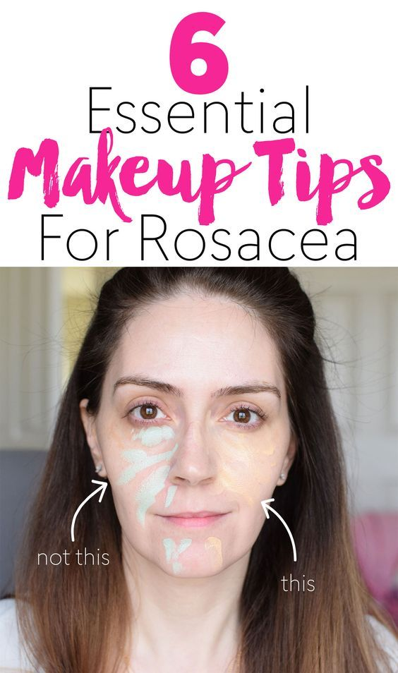 6 Essential Makeup Tips For Rosacea