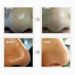 How to Make a Face Mask to Remove Blackheads: 2 egg whites whisked plus 1tsp lemon juice. Let harden 15-20 mins. Peel off. | PinTutorials