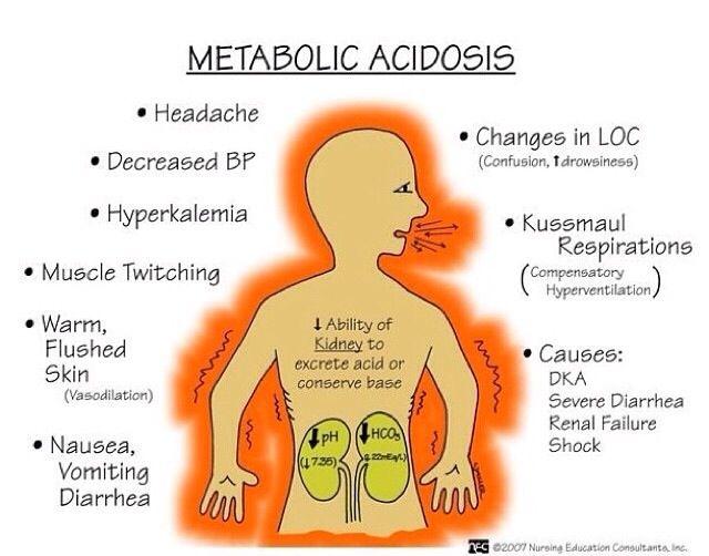 Metabolic acidosis - Nursing school flash card