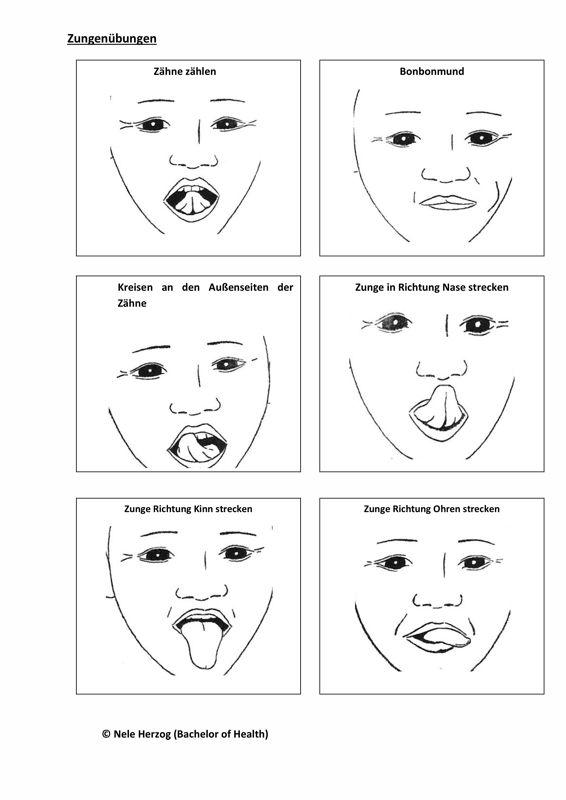 Myofunktionelle Therapie: Zungenübungen - Therapiematerial zu myofunktionelle Störung. Auf madoo.net für deine logopädische Therapie.