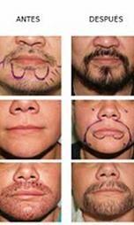 """Información+sobre+implantes+faciales.+Descubre+en+qué+consiste+un+implante+de+barba,+bigote+o+cejas.+Procedimiento+de+transplante+de+vello+facial"""""""