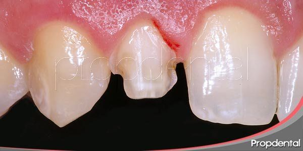 Inconvenientes de las carillas dentales