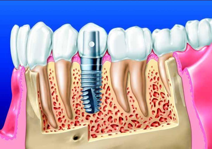 Какие преимущества у имплантов?   1. Приживление имплантов сегодня составляет 95-98%.  2. Установка импланта предотвращает убыль костной ткани на месте ранее удаленного зуба.  3. Имплант является абсолютным аналогом зуба, поэтому привыкания к нему не понадобится.  4. Имплант по функции может полностью заменить отсутствующий зуб, им можно полноценно жевать.  5. Материал импланта не вызывает аллергию.