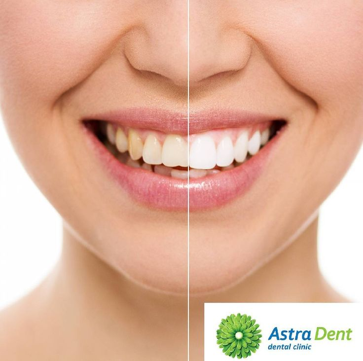 Dental Veneers in Astra Dent clinic Kyiv/Ukraine. Dental veneers help cover chipped broken and discolored teeth. These are thin shells which resemble the outer appearance of a tooth. Kiev the capital of Ukraine offers its visitors good options to regain their smile with dental veneers. Cost of ceramic restoration (veneer) from 195$. Read on to know more: https://astradent.ua/en/services/veneers…