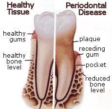 Most tooth loss in people over age 35 is from Periodontal Disease #dentalfacts #dental #facts