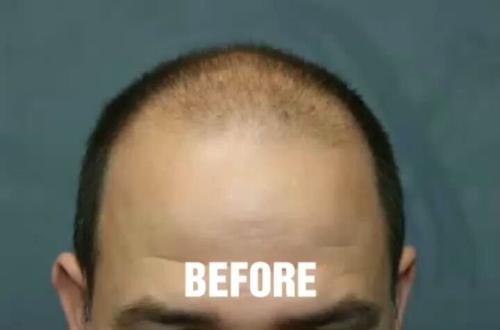 Dr Richard Chaffoo Drchaffoo Instagram Photos And Videos Hair Loss Hair Loss Remedies Hair Loss Medication