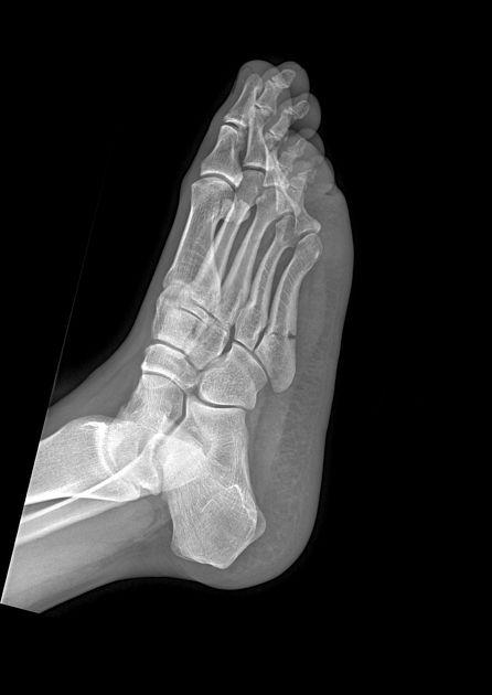 Jones fracture | Radiology Case | Radiopaedia.org