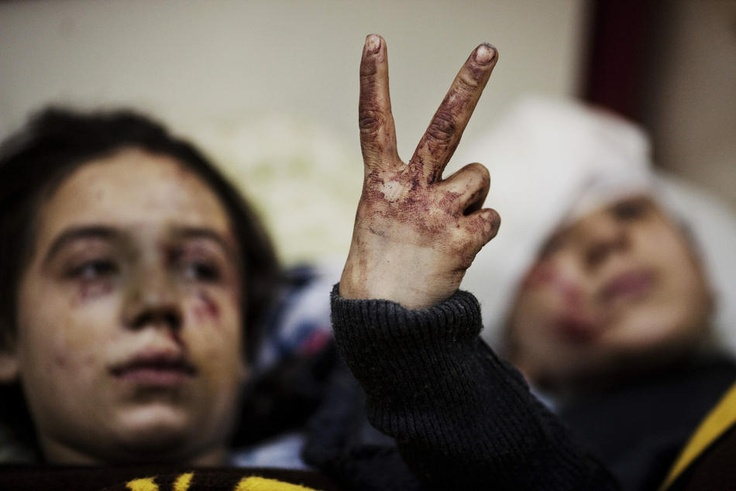 Crisis in Syria - In this Saturday, March 10, 2012 photo, Hana, 12, flashes the victory sign next to her sister Eva, 13, as they recover from severe injuries after the Syrian Army shelled their house in Idlib, north Syria. Their father and two siblings were killed after their home was shelled. (AP Photo/Rodrigo Abd)