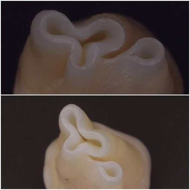 Incomplete Apex Formation #dentist #dentistry #dentista #teeth  #tooth #smile #dental #dentalhygiene #implantology #students #veneers #medicine #medicalschool #dentalcare #doctor #bleaching #estheticdentistry #followme #odontolove #odontologia #dentalsurgery #dentalstudent #aesthetics #health#pain #stomatology #identistry