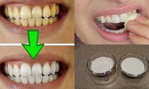 En combinant ces 2 ingrédients que vous posséder déjà dans la cuisine, vous aurez des dents blanches et plus brillantes que jamais!