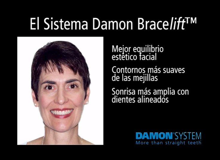 El sistema ortodoncia Damon se caracteriza por el uso de brackets de baja…