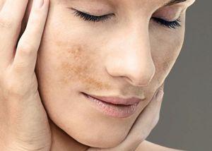 Ya sea por la exposición al sol sin protección, por cuestiones de genética, por problemas en el hígado, por el embarazo, por el uso de antibióticos, etc, partes de nuestra piel va adquiriendo una pigmentación diferente...  Aprende como prevenir y reducir las manchas en la piel.
