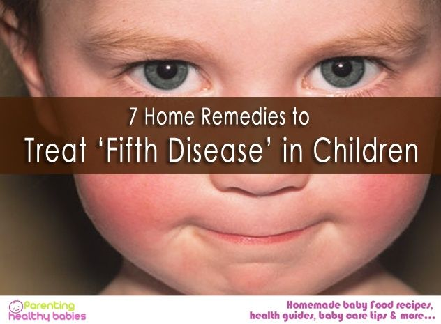 Fifth disease-It is not some countdown as it sounds,but a very common disease among kids with scientific name Erythema infectiosum. 7 Home Remedies to Treat 'Fifth Disease' in Children!  #fifthdisease #erythemainfectiosum